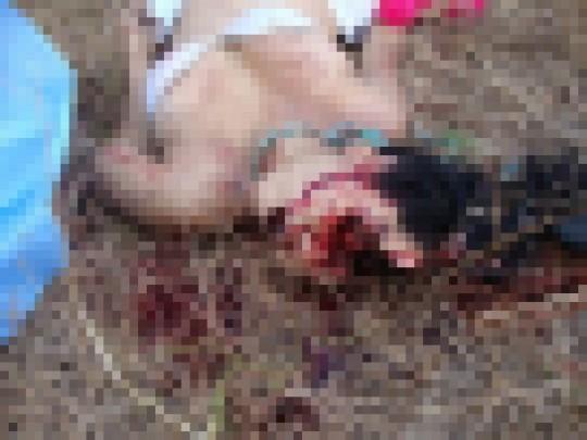 【閲覧注意】レイプされた後ポアされた女性の画像貼ってく。脚無いのとかもう理解不能・・(画像22枚)・20枚目