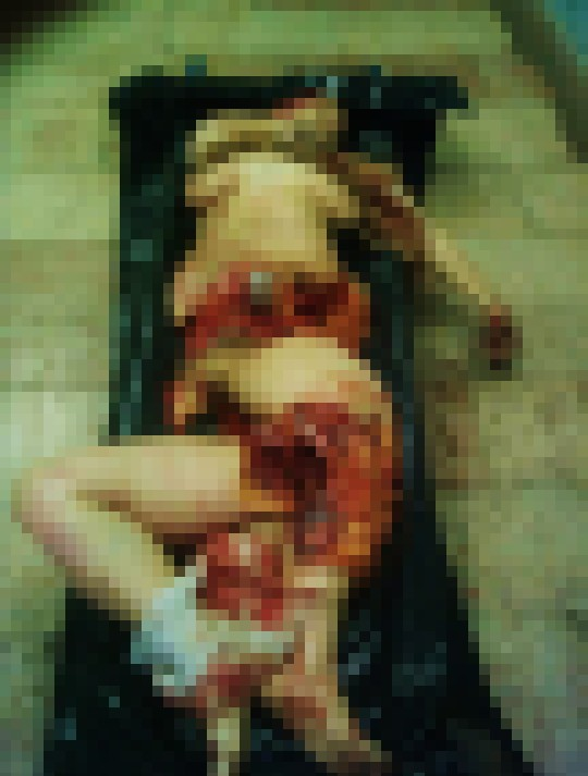 【閲覧注意】レイプされた後ポアされた女性の画像貼ってく。脚無いのとかもう理解不能・・(画像22枚)・7枚目