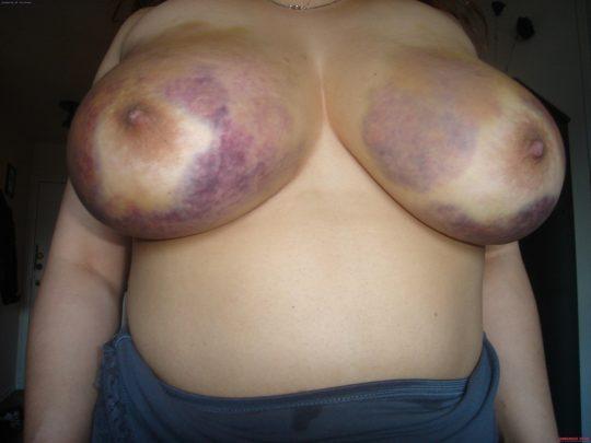 【閲覧注意】DVを受けた女性のおっぱいの画像をご覧下さい。。。(画像あり)・1枚目