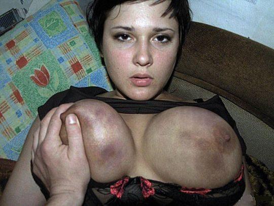 【閲覧注意】DVを受けた女性のおっぱいの画像をご覧下さい。。。(画像あり)・5枚目