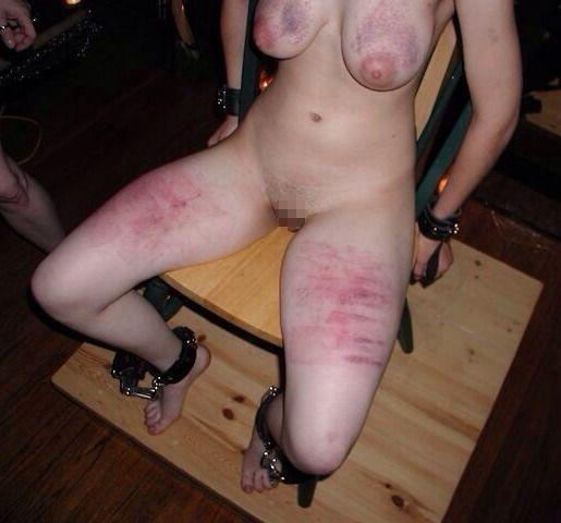 【閲覧注意】DVを受けた女性のおっぱいの画像をご覧下さい。。。(画像あり)・7枚目