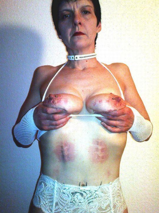 【閲覧注意】DVを受けた女性のおっぱいの画像をご覧下さい。。。(画像あり)・11枚目