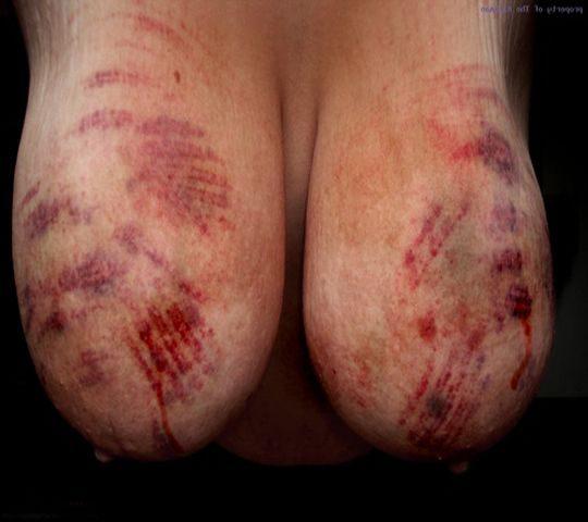 【閲覧注意】DVを受けた女性のおっぱいの画像をご覧下さい。。。(画像あり)・18枚目