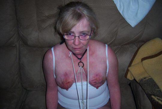 【閲覧注意】DVを受けた女性のおっぱいの画像をご覧下さい。。。(画像あり)・19枚目