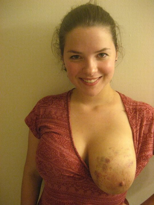 【閲覧注意】DVを受けた女性のおっぱいの画像をご覧下さい。。。(画像あり)・22枚目