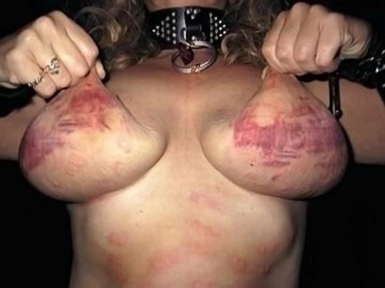【閲覧注意】DVを受けた女性のおっぱいの画像をご覧下さい。。。(画像あり)・25枚目
