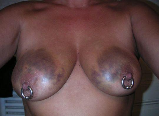 【閲覧注意】DVを受けた女性のおっぱいの画像をご覧下さい。。。(画像あり)・26枚目