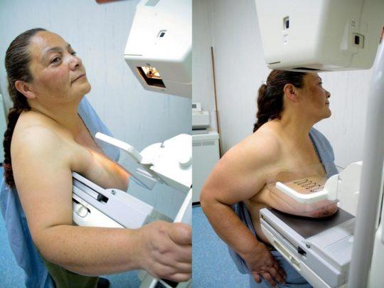 【おっぱい注意】外 国 人 ま ん さ ん の 乳 が ん 検 診 の 様 子 を ご 覧 下 さ い 。(画像あり)・2枚目