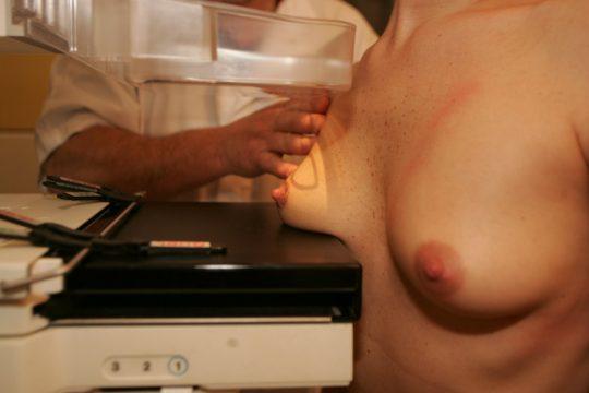 【おっぱい注意】外 国 人 ま ん さ ん の 乳 が ん 検 診 の 様 子 を ご 覧 下 さ い 。(画像あり)・5枚目