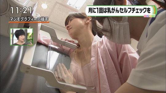 【冒涜】小林麻央さんで注目を浴びるTVの乳癌検診特集、メインの視聴者はお父さん達という事実・・・・・(キャプ画像30枚)・6枚目