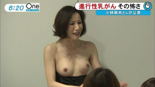 【冒涜】小林麻央さんで注目を浴びるTVの乳癌検診特集、メインの視聴者はお父さん達という事実・・・・・(キャプ画像30枚)・7枚目