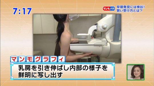 【冒涜】小林麻央さんで注目を浴びるTVの乳癌検診特集、メインの視聴者はお父さん達という事実・・・・・(キャプ画像30枚)・18枚目
