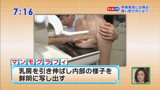 【冒涜】小林麻央さんで注目を浴びるTVの乳癌検診特集、メインの視聴者はお父さん達という事実・・・・・(キャプ画像30枚)・19枚目