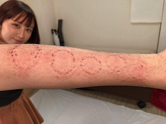 【閲覧注意】人気AV女優に腕や体を噛まれるという理解不能なサービスを受けた結果・・(画像あり)・2枚目