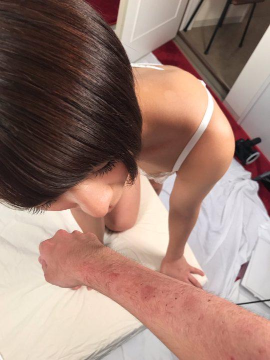 【閲覧注意】人気AV女優に腕や体を噛まれるという理解不能なサービスを受けた結果・・(画像あり)・4枚目