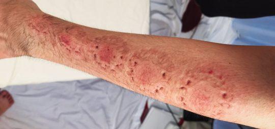 【閲覧注意】人気AV女優に腕や体を噛まれるという理解不能なサービスを受けた結果・・(画像あり)・5枚目