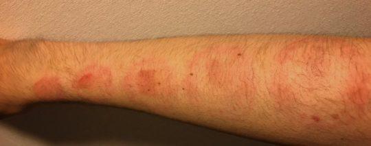 【閲覧注意】人気AV女優に腕や体を噛まれるという理解不能なサービスを受けた結果・・(画像あり)・7枚目