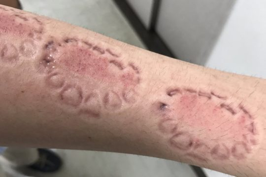【閲覧注意】人気AV女優に腕や体を噛まれるという理解不能なサービスを受けた結果・・(画像あり)・9枚目