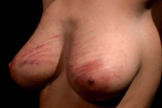 【流血注意】外国人SMマニア(ガチ勢)のプレイの様子がコチラ、生傷ヤバ過ぎて絶句・・・・・(画像30枚)・10枚目