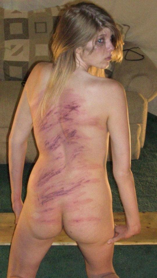 【流血注意】外国人SMマニア(ガチ勢)のプレイの様子がコチラ、生傷ヤバ過ぎて絶句・・・・・(画像30枚)・16枚目