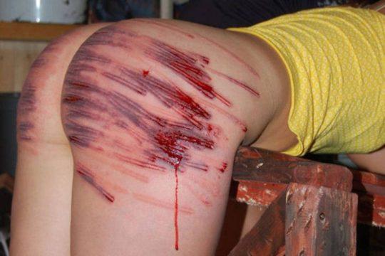 【流血注意】外国人SMマニア(ガチ勢)のプレイの様子がコチラ、生傷ヤバ過ぎて絶句・・・・・(画像30枚)・18枚目