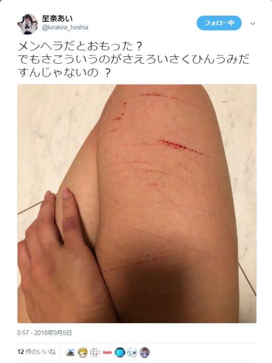 【超メンヘラ】AV女優の星奈あいさん、ホスト狂いから精神を壊してレッグカットwwwwwww(画像あり)・4枚目
