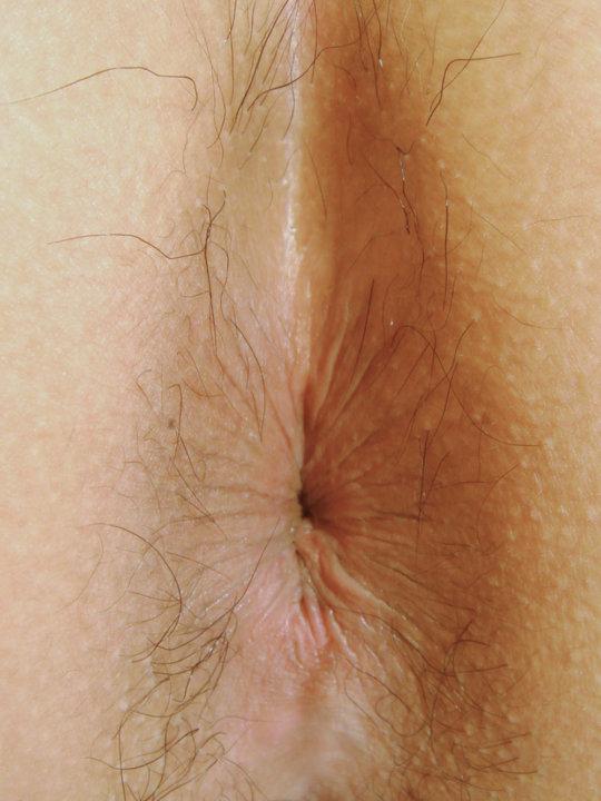 【肛 門】ア ナ ル の形状をじっくり観察するスレ。マジで十人十色wwwwww・4枚目
