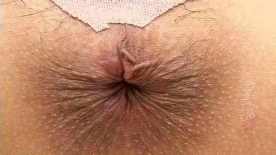 【肛 門】ア ナ ル の形状をじっくり観察するスレ。マジで十人十色wwwwww・6枚目